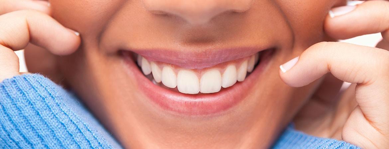 Dental veneers - Jones & Zirker - Iowa City